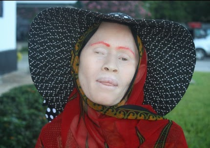 Love in a time of fear: Albino women's stories from Tanzania