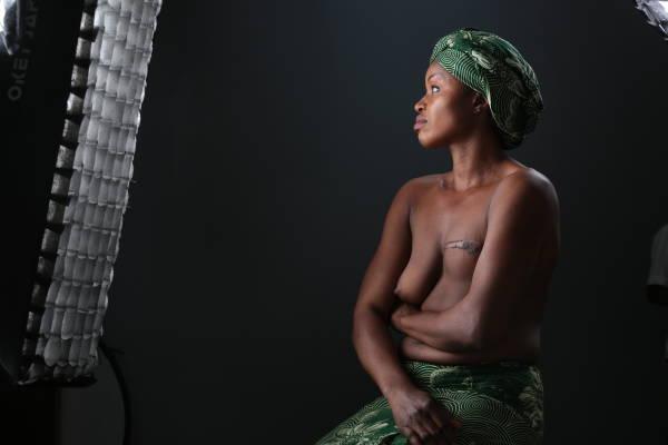 The agonizing story of Comfort Oyayi Daniel #SaveOyayi from breast cancer