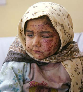 Wounded Girl in Iraq