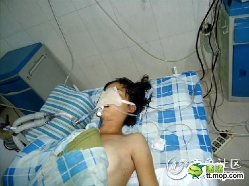 A Shandong schoolgirl who committed suicide apparently because of troubles at school over the length of her hair.