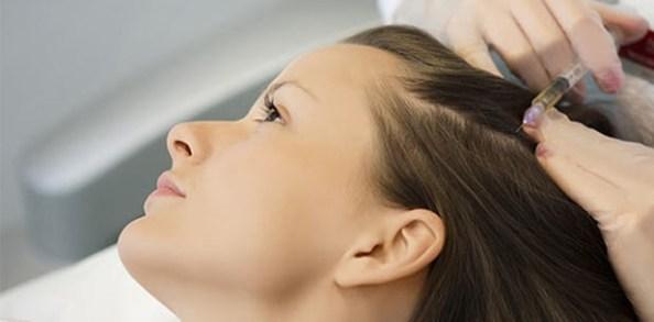 Mesotherapie cheveux