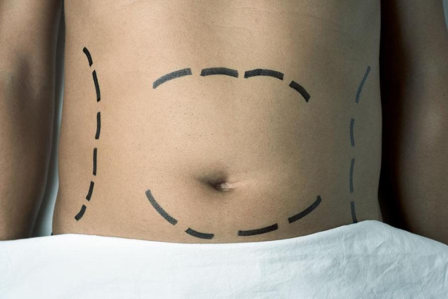 liposuzione o liposcultura