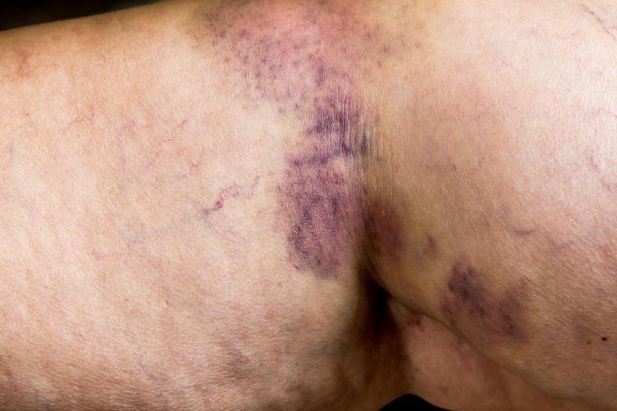 Trattamento capillari e teleangectasie