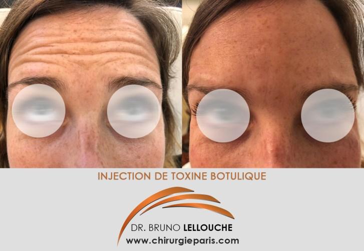 Injections de botox ou toxine botulique
