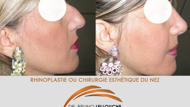 Rhinoplastie chirurgie esthétique nez