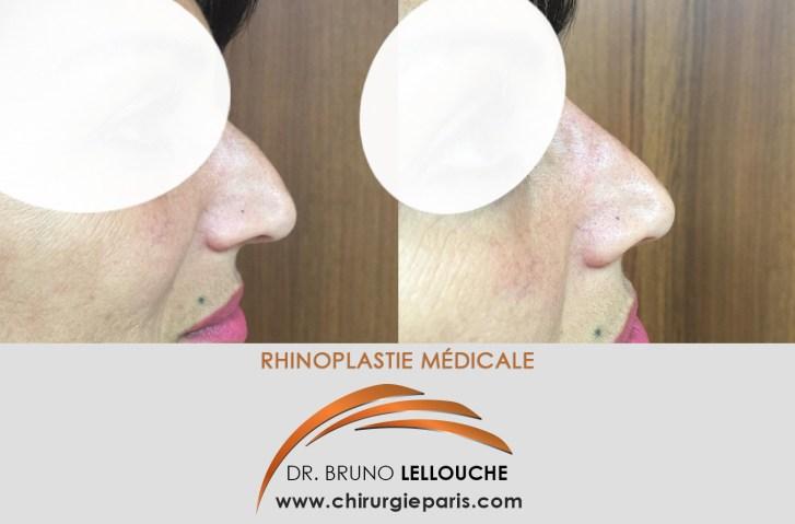 Rhinoplastie esthétique c'est à dire Injection d'acide Hyaluronique 10 ans après une Rhinoplastie chirurgicale...