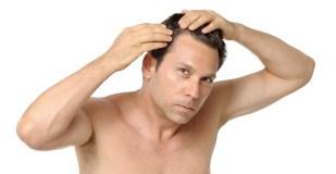 Man Inspecting Receding Hairline Baldness on White