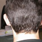 otoplastie chirurgie esthétique des oreilles