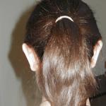 Autoplastie chirurgie esthétique des oreilles