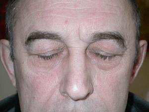 Interventions de blépharoplastie ou chirurgie esthétique du nez