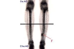 Scintigraphie d'une fracture du tibia.