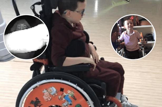 Kyle Fitzgerald with cerebral palsy has thieves steal wheelchair from him.