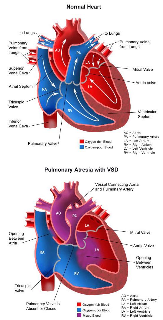 Pulmonary Valve Atresia