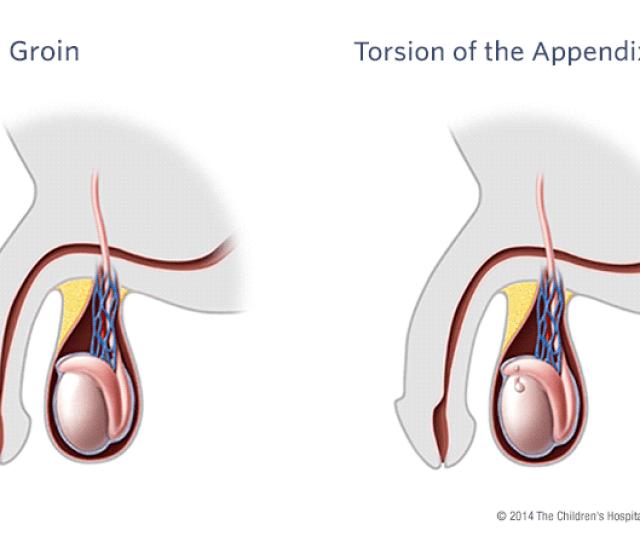 Torsion Of The Appendix Illustration