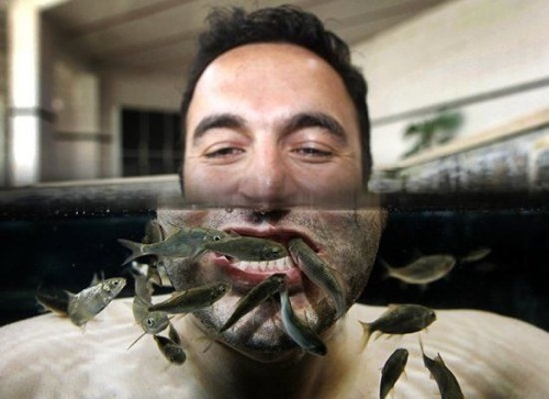 Fish Face Treatment