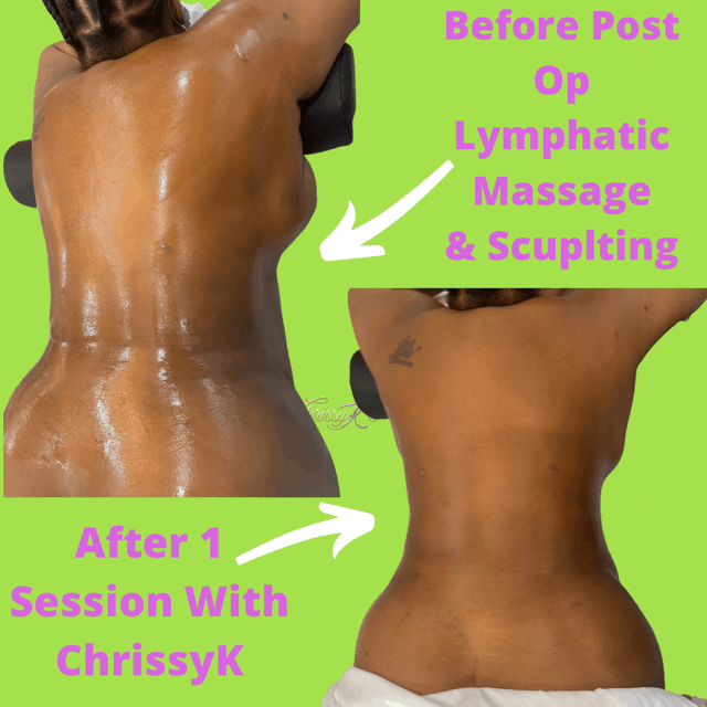 Body Contouring | Post-Op Aftercare