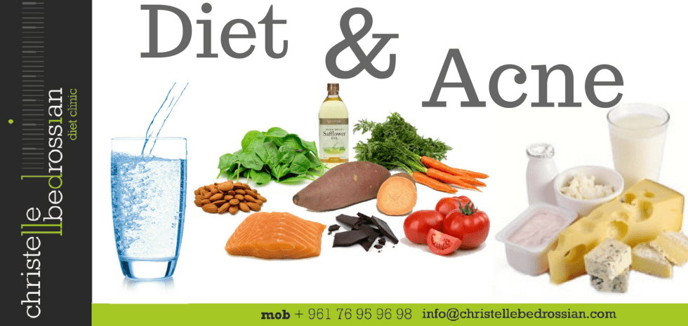 best dietitian lebanon, lebanon, diet, diet clinic, lose weight lebanon, diet , acne