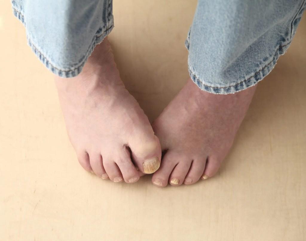 man with gross toenails