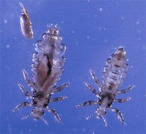 head lice picture