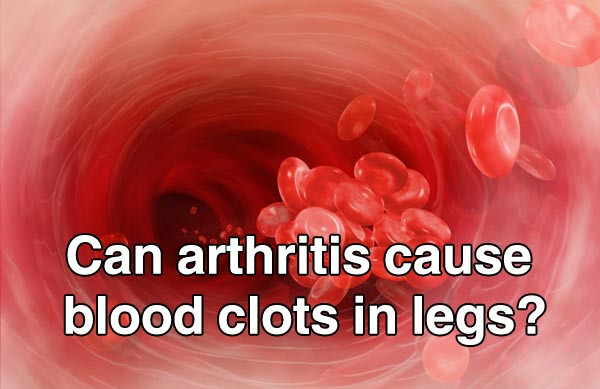 Can arthritis cause blood clots in legs