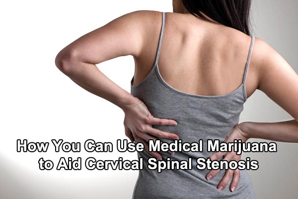 How-You-Can-Use-Medical-Marijuana-to-Aid-Cervical-Spinal-Stenosis