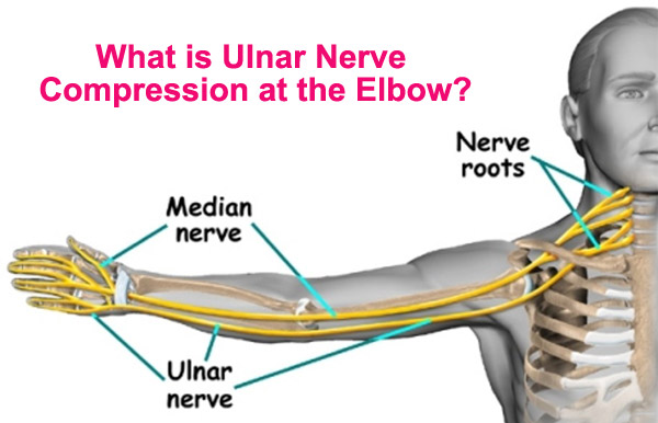 What is Ulnar Nerve Compression at the Elbow