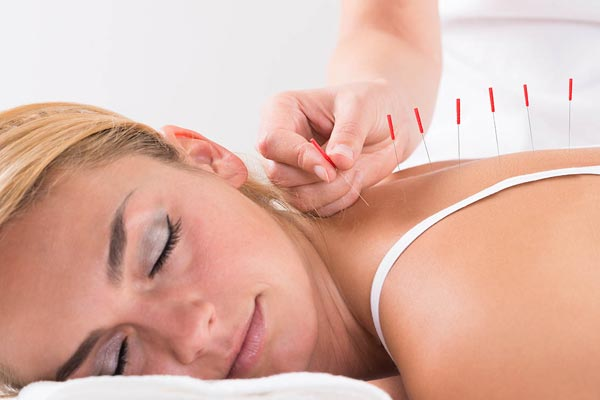 How to Choose an Acupuncturist