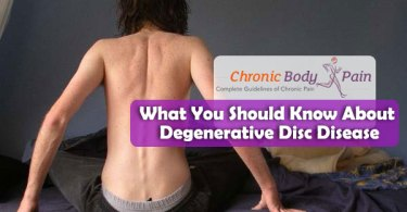 Degenerative Disc Disease causes