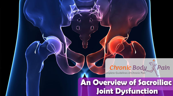 An Overview of Sacroiliac Joint Dysfunction