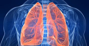 Symptoms of pulmonary disease