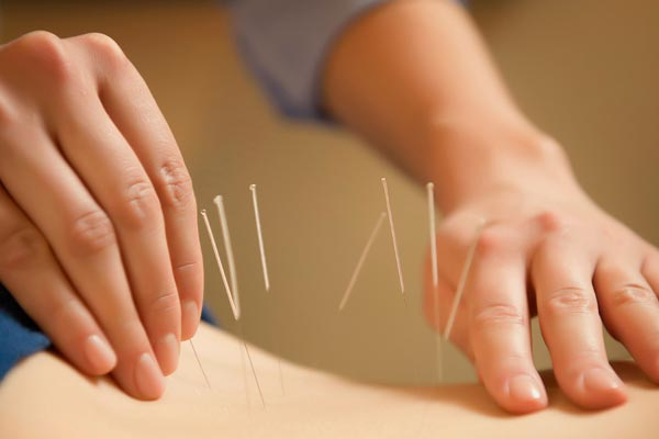 Acupuncture for PMS
