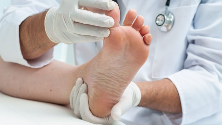 symptoms of peroneal nerve damage