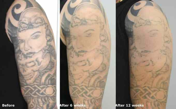 How Long in Between Tattoo Removal Treatments?