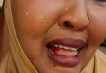 Kenyan Female MP, Fatuma Gedi after she was beaten up by a colleague, Rashid Kassim