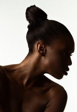 recherche dermatologue peau noire