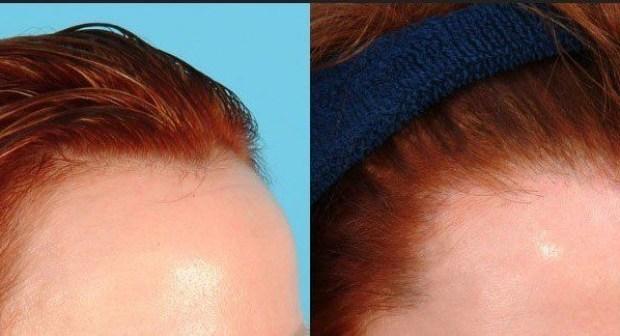 أهم المعلومات عن تطور عمليات زراعة الشعر في تركيا