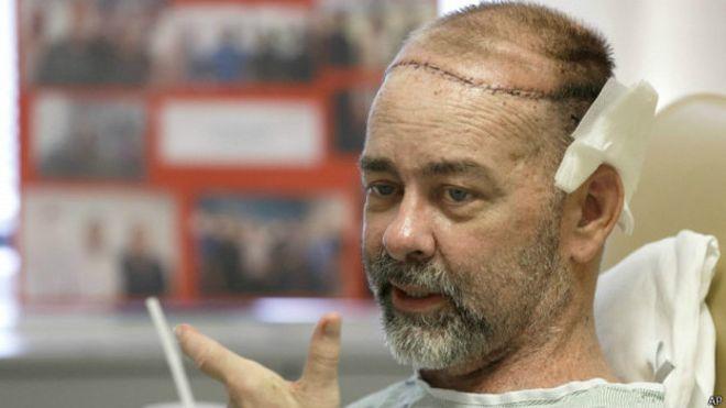 Trasplantan cráneo y cuero cabelludo por primera vez.El hombre tenía un enorme agujero en su cabeza.