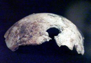 El cráneo de Hitler