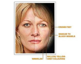 Premature Skin Aging From Smoking Cigarettes
