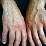 Rheumatoid Arthritis Link to Lung Cancer