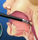 Robotic Throat Cancer Procedure