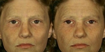 Aging of a Smoker's Face Not a Pretty Picture
