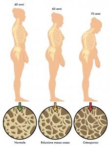 osteoporosi-