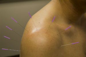 Acupuncture treatment for Shoulder Pain in Sheikh Zayed, Egypt