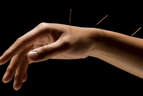 Best Acupuncturist in Cairo for Most common Diseases