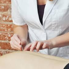 Best Acupuncturist in Nasr city