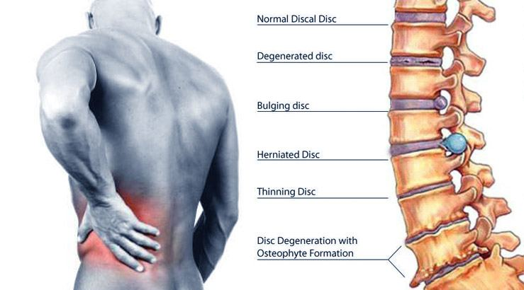 Best Physiotherapy clinic in Cairo for Herniated disc treatment