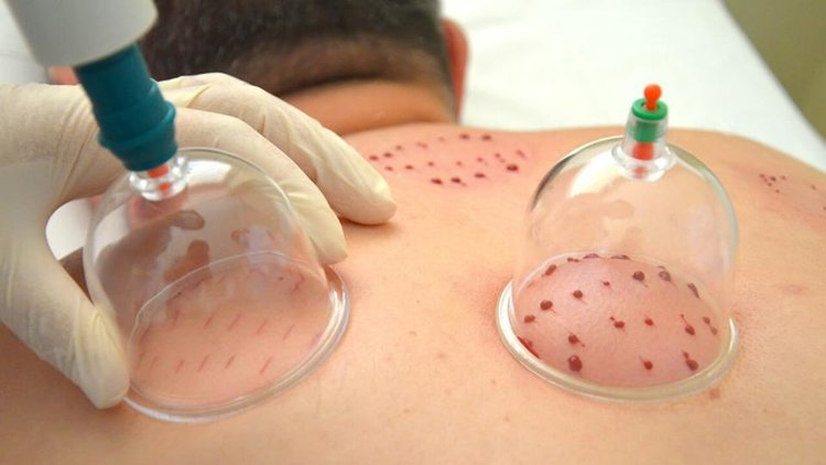blood Cupping Therapy in Cairo, Egypt for Hijama Treatment