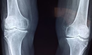 How to Find Clinic to Treatment knee Osteoarthritis in Sheikh Zayed, Egypt