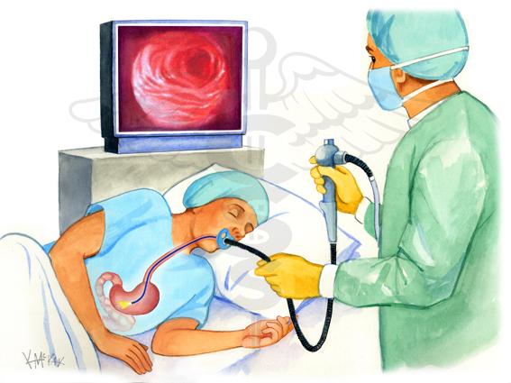 esame gastroscopia sardegna-cagliari